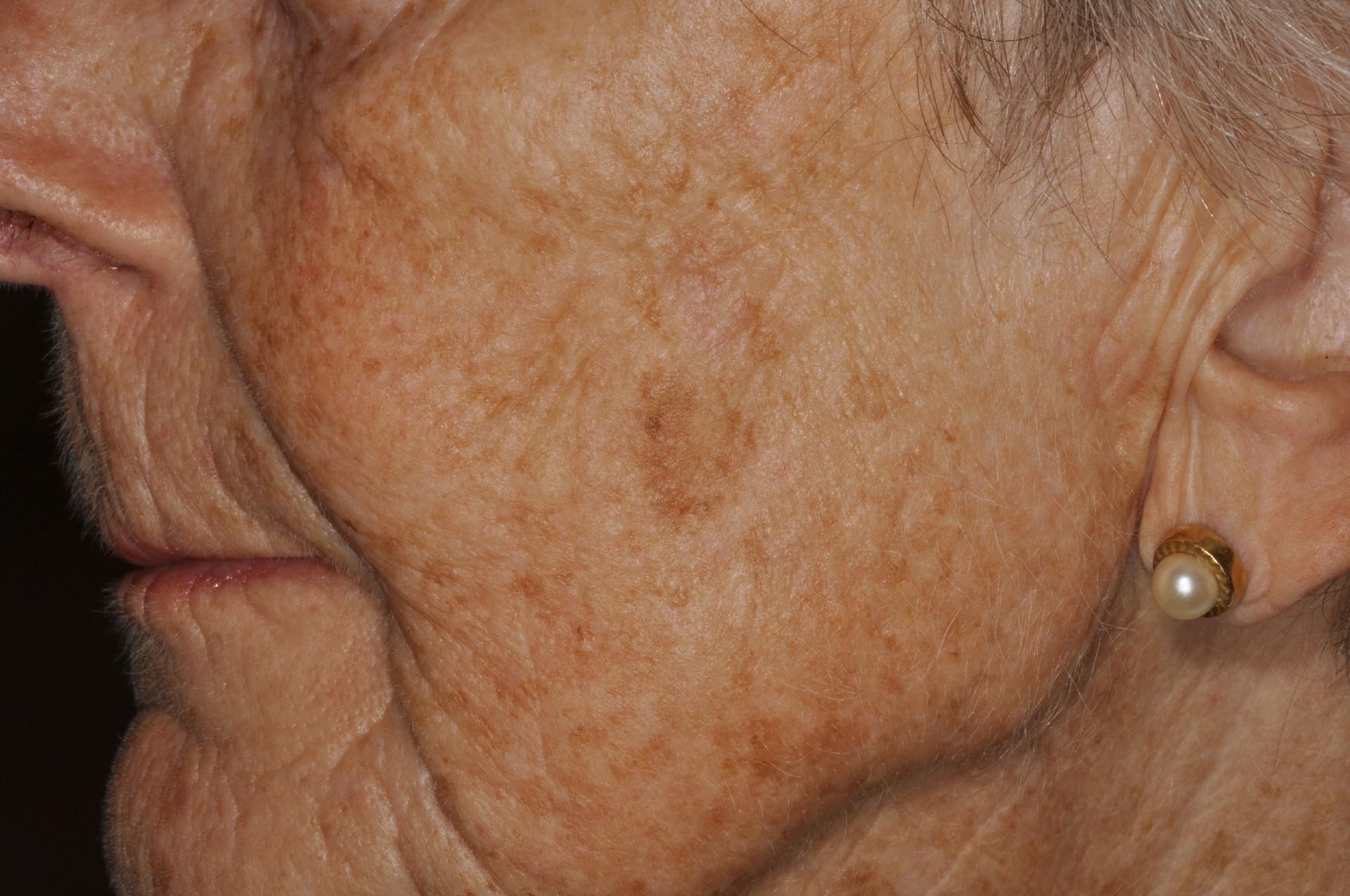 Hautarztpraxis Dr Hempel Altersflecken Laserentfernung