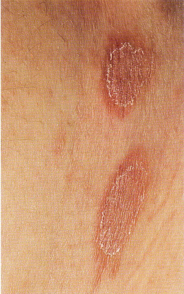 rote flecken brust